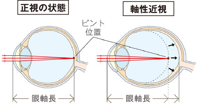 近視の進行抑制が大切なわけ